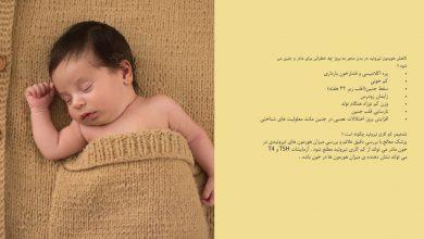 تصویر از کمکاری تیروئید